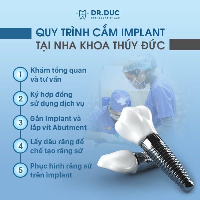 Quy trình cấy ghép trụ implant 1