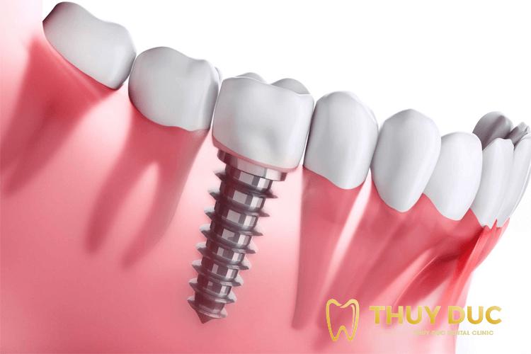 Cấy răng Implant tức thì hiệu quả có cao không? 1