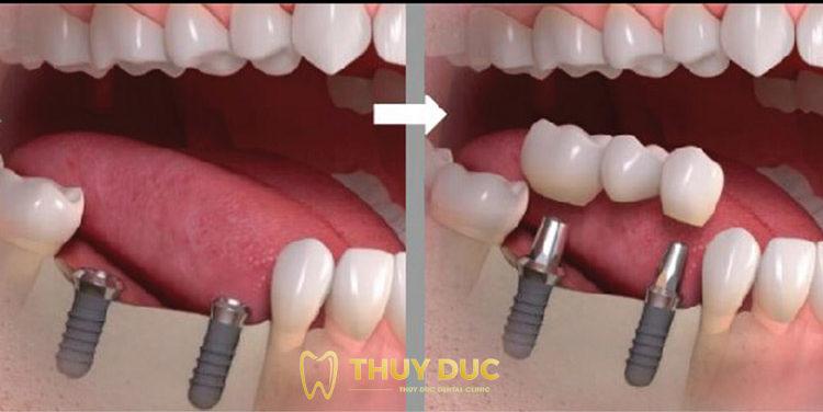 Bước 4: Lấy dấu răng để chế tác răng sứ 1