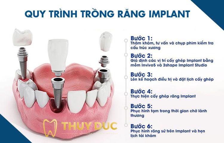Trồng răng implant diễn ra như thế nào? 1