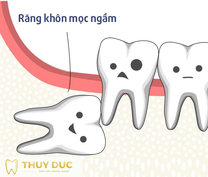 Nhổ răng khôn mọc ngầm và những điều cần lưu ý 1