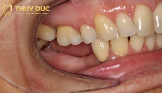Những điều cần biết về răng số 7