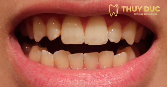 Tẩy trắng răng có tốt hay không? 1
