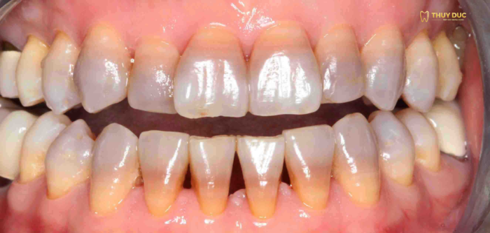 Những trường hợp không nên tẩy trắng răng? 1