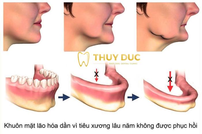 1. Hạn chế tối đa tình trạng tiêu xương hàm 1