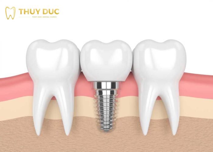 Điều kiện xương như thế nào để đảm bảo trồng răng implant? 1