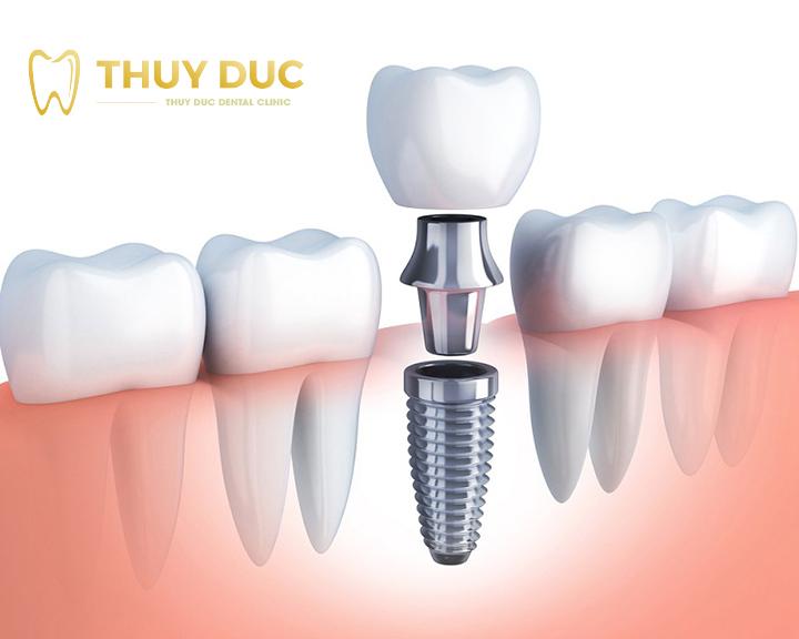 Lựa chọn trụ răng Implant phải cứng chắc 1