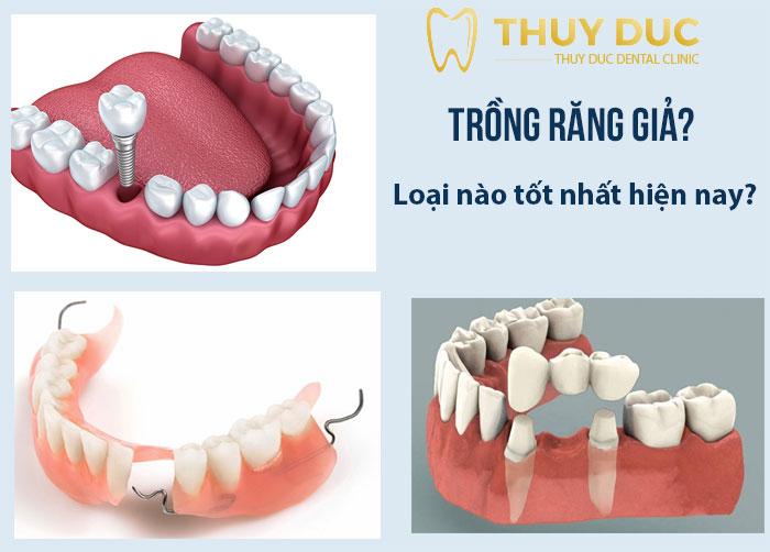 Trồng răng giả loại nào tốt nhất hiện nay? 1
