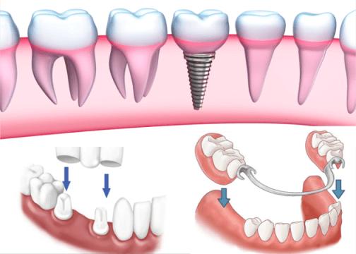 Nên trồng răng loại nào tốt nhất? 1