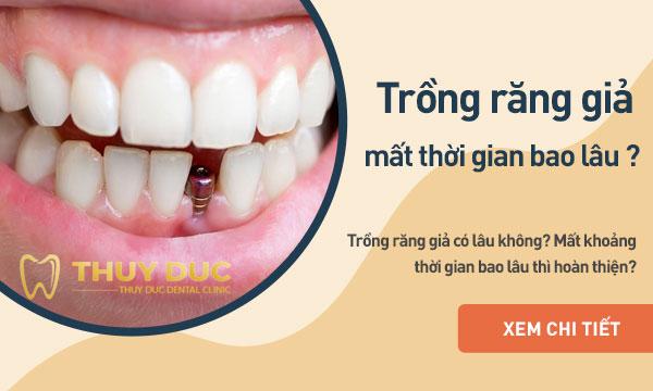 Trồng răng giả mất thời gian bao lâu thì hoàn thiện? 1