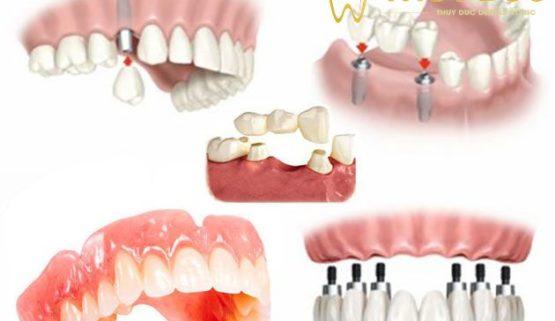 6 điều cần biết trước khi trồng răng giả