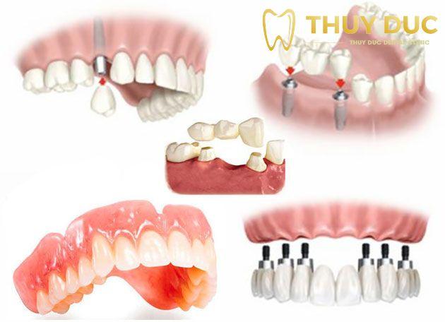 6 điều cần biết trước khi trồng răng giả 1