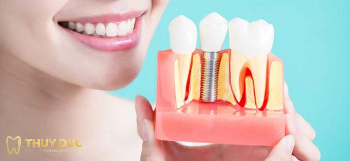 Dịch vụ trồng răng implant tại Nha khoa Thúy Đức 1