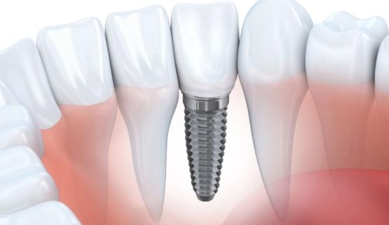 Bảng báo giá trồng răng Implant tại nha khoa Thúy Đức năm 2021