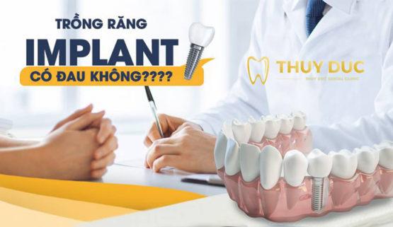 Trồng răng Implant có đau không? Cách giảm đau khi trồng răng