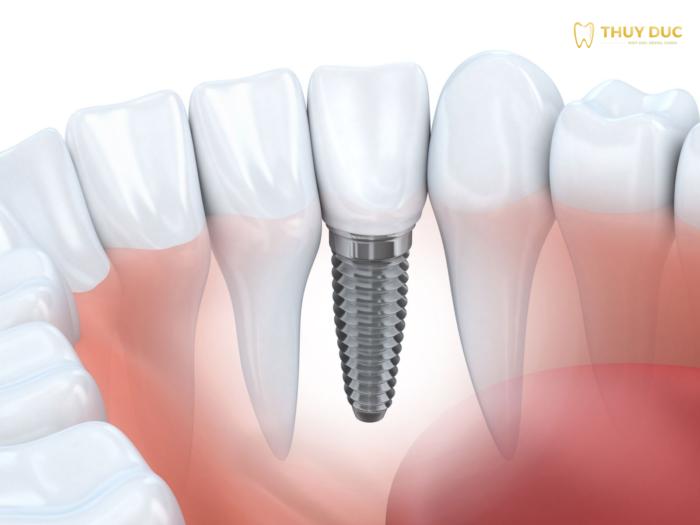 Bảng báo giá trồng răng implant tại Nha khoa Thúy Đức năm 2021 1
