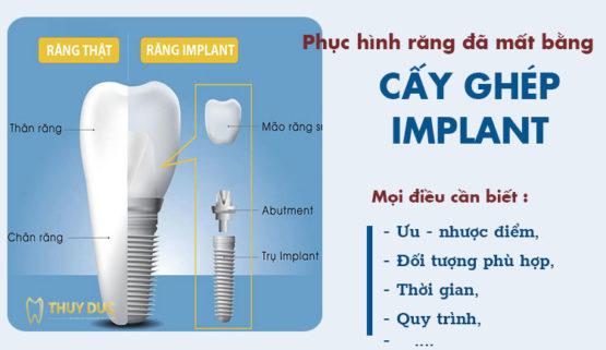Trồng răng Implant là gì? Những điều cần phải biết trước khi chọn trồng răng implant