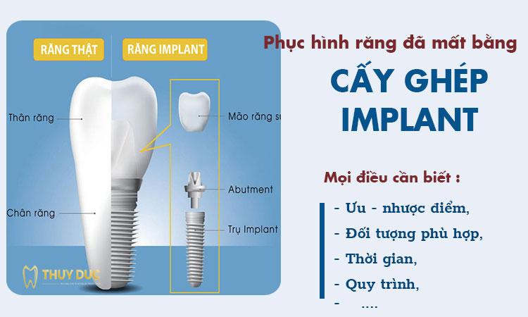 Trồng răng Implant là gì? Những điều cần phải biết trước khi chọn trồng răng implant 1