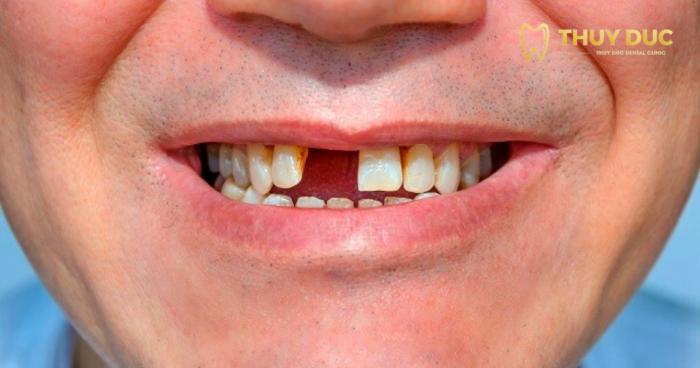 Bị mất một răng 1
