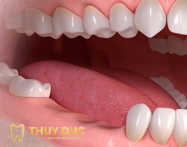Bị mất nhiều răng 1