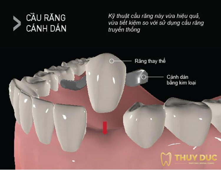 Cầu răng cánh dán 1