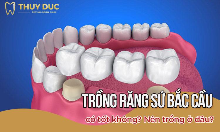 Trồng răng sứ bắc cầu có tốt không? Giải đáp của chuyên gia 1