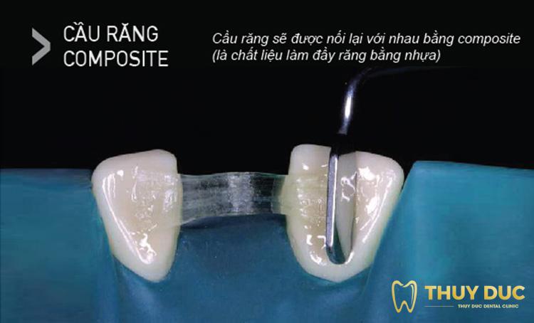 Cầu răng Composite 1