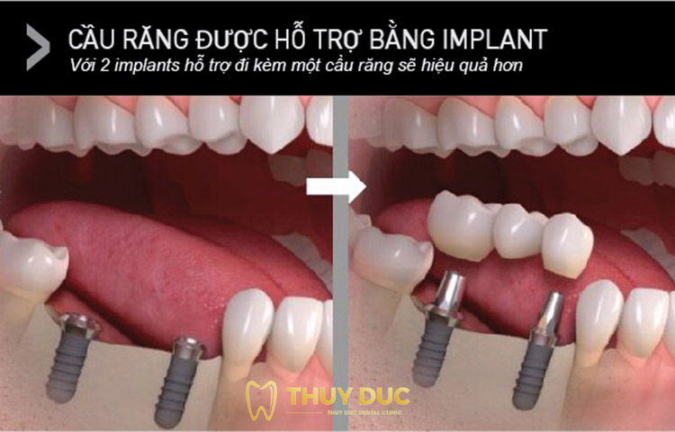 Cầu răng được hỗ trợ bằng implant 1