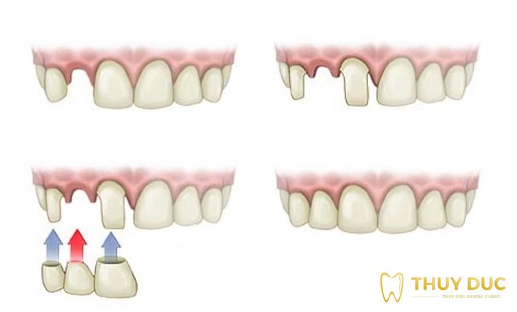 Trồng răng sứ bắc cầu là gì? 1