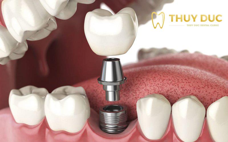 Trụ implant là gì? 1