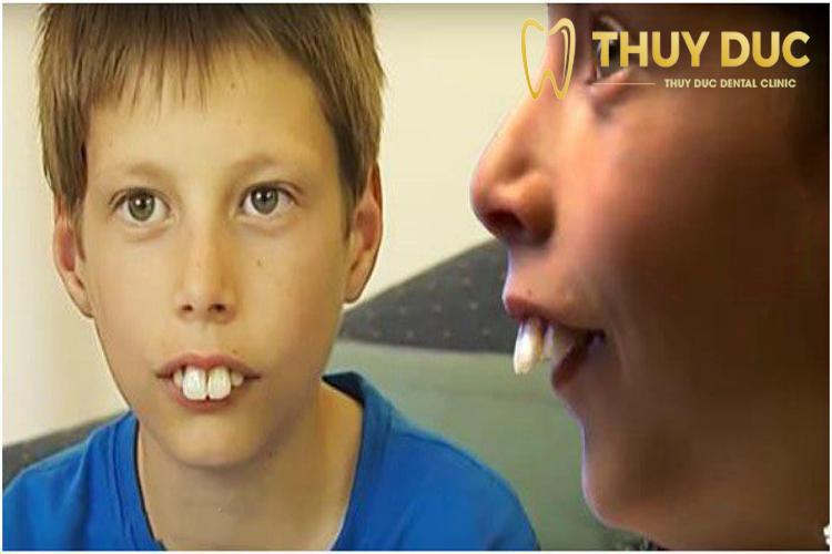 Răng thỏ xấu 1