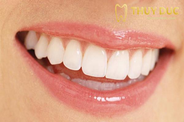 Ưu điểm của phương pháp bọc răng sứ 1