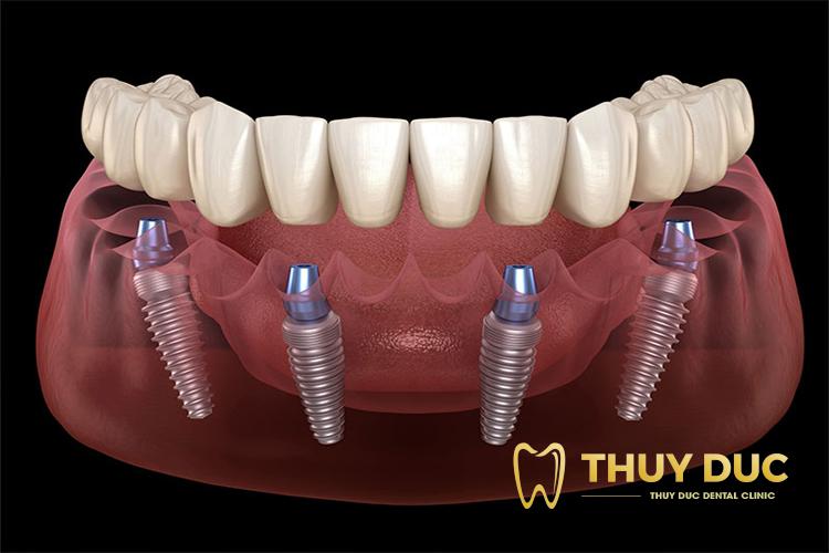 Với trường hợp mất răng nguyên hàm 1
