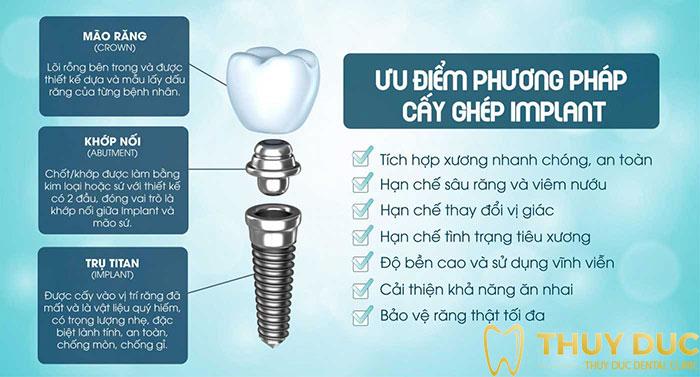 Ưu nhược điểm của răng implant 1