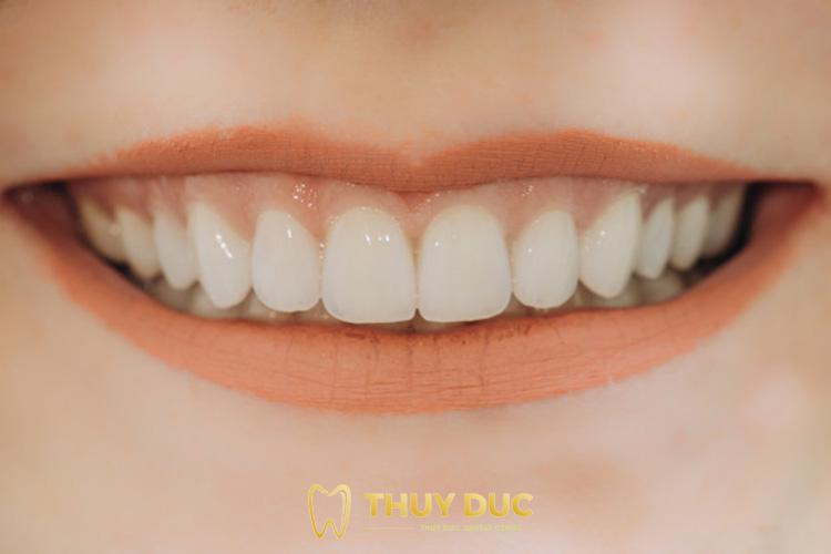 Ưu điểm của trồng răng sứ bắc cầu 1