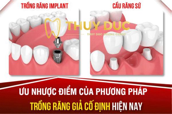 Ưu nhược điểm của phương pháp trồng răng giả cố định 1