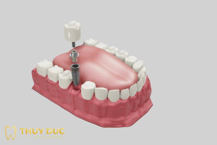 Vật liệu cấy ghép implant 1