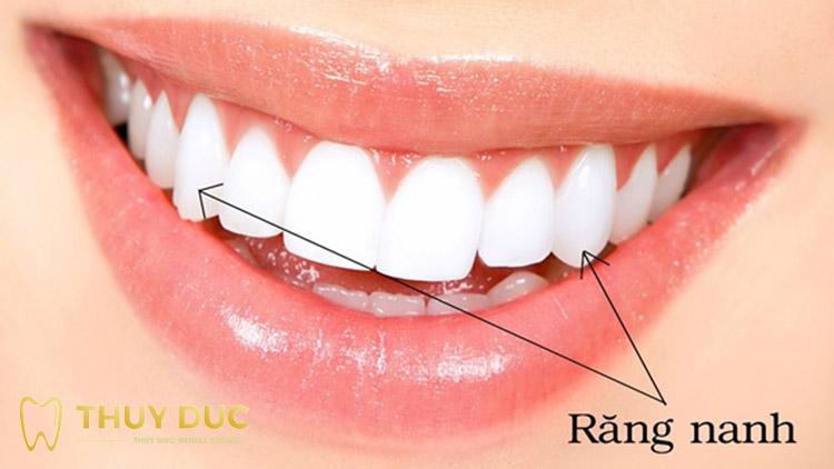 Tìm hiểu vị trí và chức năng của răng nanh 1