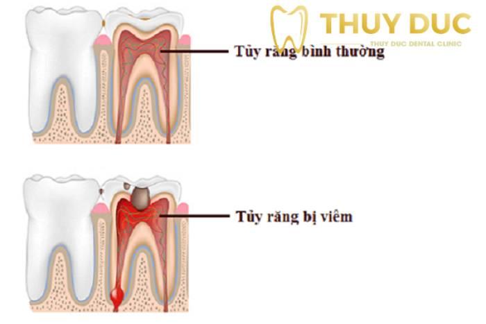1. Viêm tủy răng là bệnh gì? 2