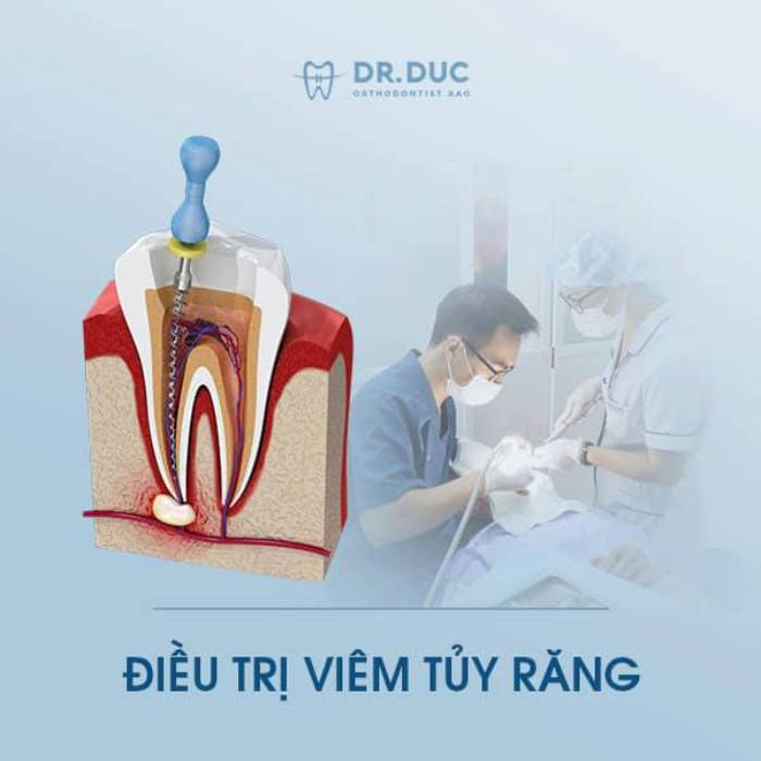 Điều trị tủy răng 1
