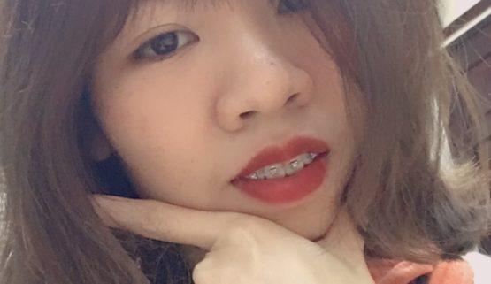 Nhật ký niềng răng tuổi 26