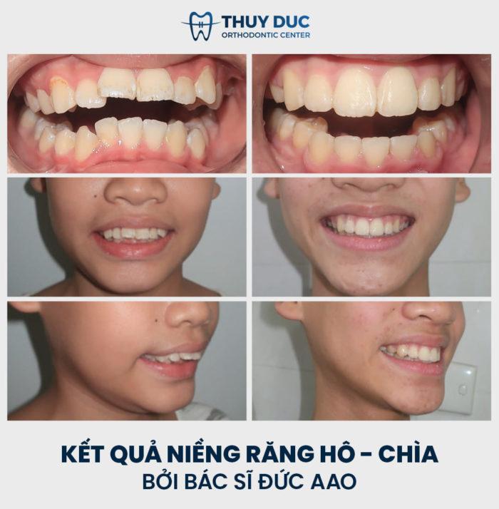 Kết quả niềng răng không cần nhổ răng cho trẻ thực hiện bởi bác sĩ Phạm Hồng Đức 4