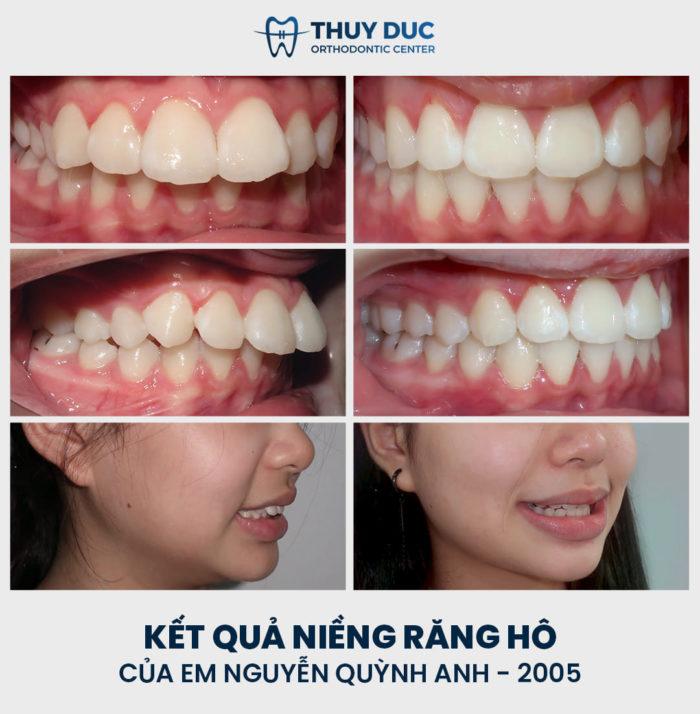 Kết quả niềng răng không cần nhổ răng cho trẻ thực hiện bởi bác sĩ Phạm Hồng Đức 3