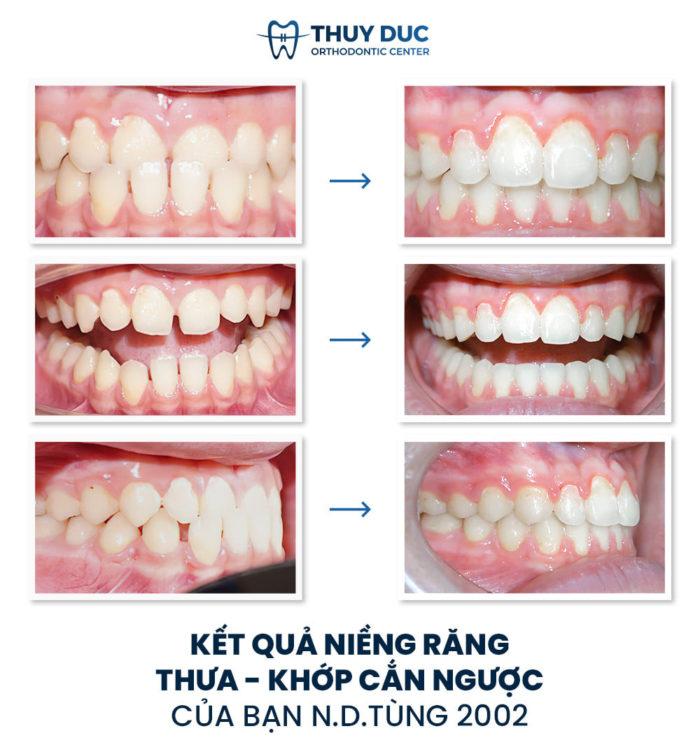 Kết quả niềng răng không cần nhổ răng cho trẻ thực hiện bởi bác sĩ Phạm Hồng Đức 1