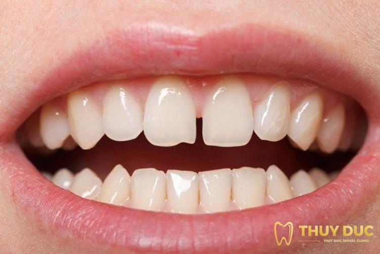Răng thưa có ảnh hưởng gì không? 1