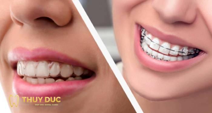 Có nên chọn niềng răng bằng mắc cài sứ tự buộc không? 2