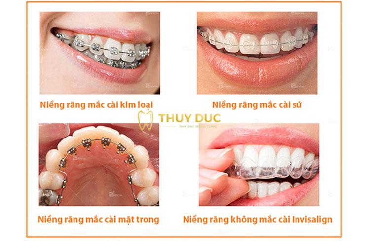 Các phương pháp niềng răng phổ biến hiện nay 1