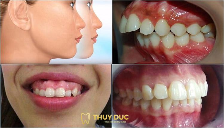 Những trường hợp nào nên niềng răng hô? 1
