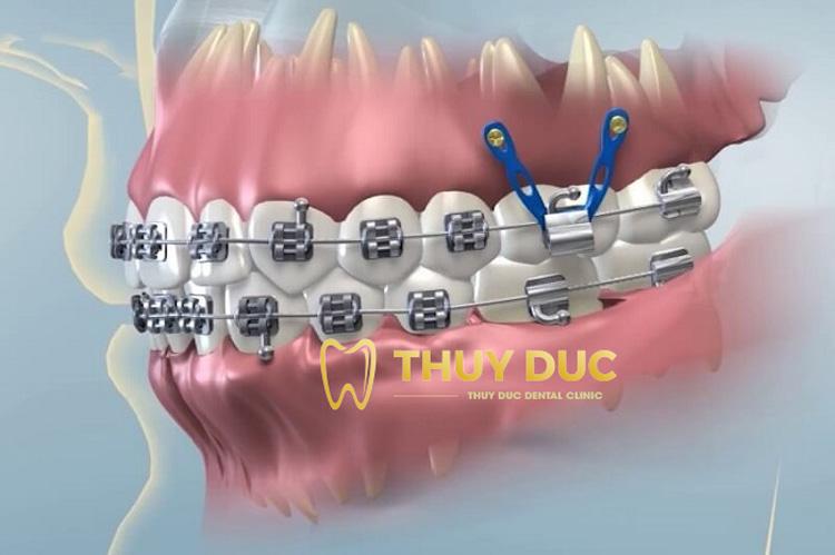 Quy trình cắm vít khi niềng răng 1