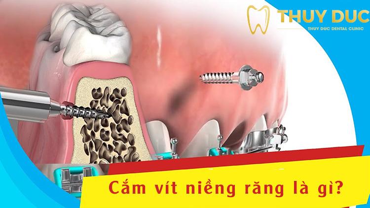 Cắm vít khi niềng răng là gì? 1